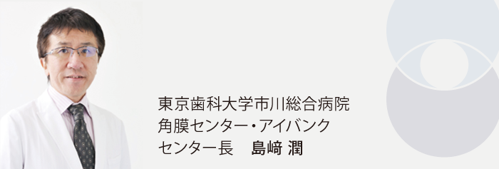 東京歯科大学市川総合病院 角膜センター センター長 島﨑 潤