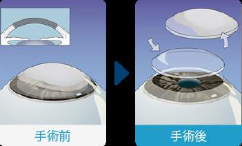 全層角膜移植術(PKP)