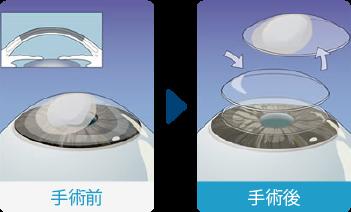 深層表層角膜移植術(DLKP)