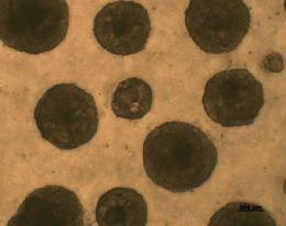 図)角膜輪部上皮ニッチ長期培養中の細胞。