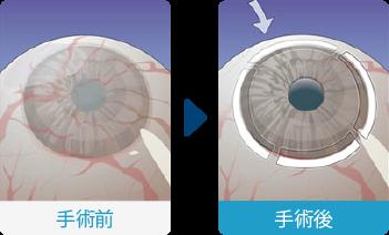 角膜輪部移植(LT)